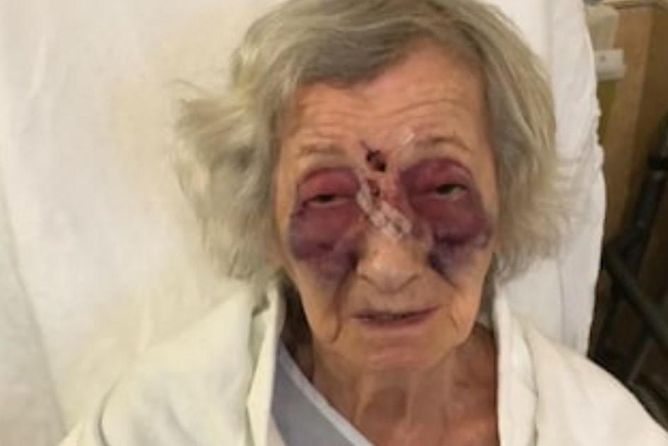 Anziana di 92 anni sopravvissuta all'olocausto brutalmente aggredita sul bus
