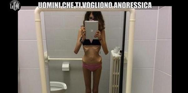 Esistono uomini che vogliono vederti anoressica: tutte ossa e mentre vomiti
