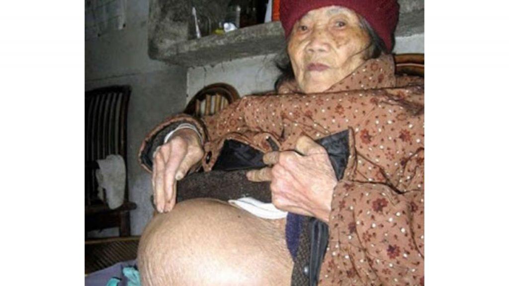 Novantenne scopre di avere in grembo un feto morto da 50 anni