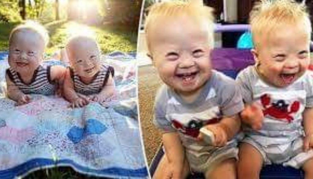 I gemelli pieni di gioia con la sindrome di Down stanno ispirando il mondo sui social media