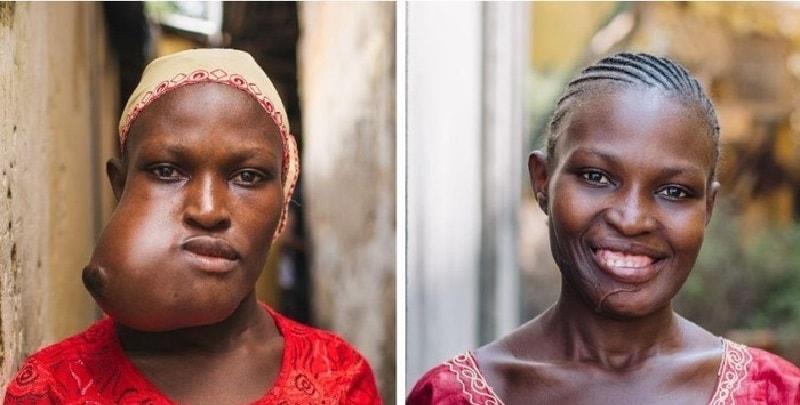 Isatu, una storia durata 20 anni prima di riuscire a sorridere (Foto)
