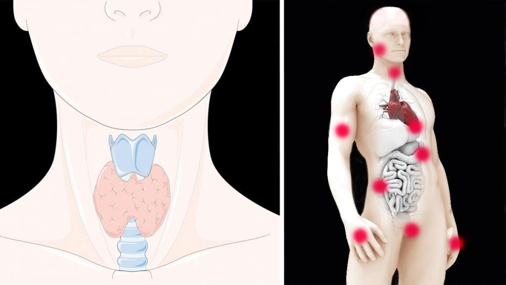 Il malfunzionamento della tiroide puo farti ammalare e ingrassare. Gli 11 sintomi insospettabili