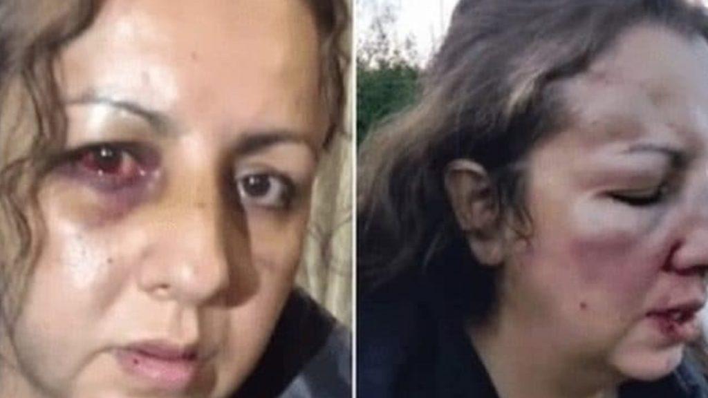 Mamma pestata a sangue dalle compagne di scuola della figlia: gia le aveva denunciate