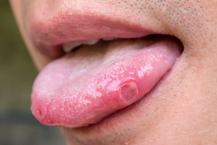Come fare per scoprire perchè nascono i brufoli sulla lingua